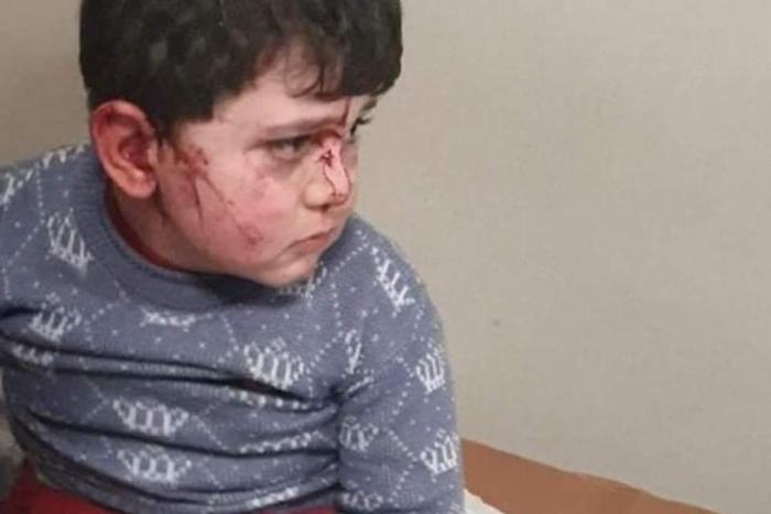 Gence'ye düşman ateşleri: Ölü ve yaralılar var