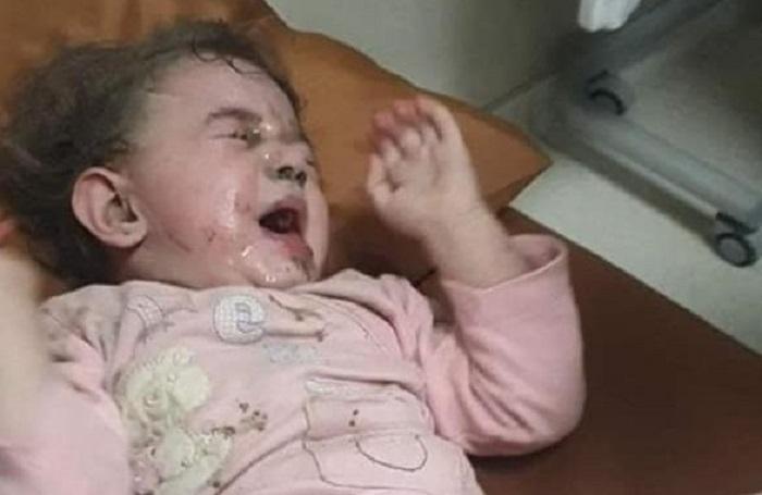 Gence'de 6 çocuk yaralandı