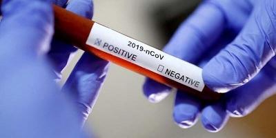 Azerbaycan'da 56 kişide daha korona virüs tespit edildi