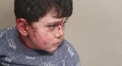 Gence'de 6 çocuk yaralandı - FOTOĞRAFLAR